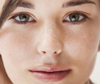 Alimentos que te ayudarán a combatir el acné